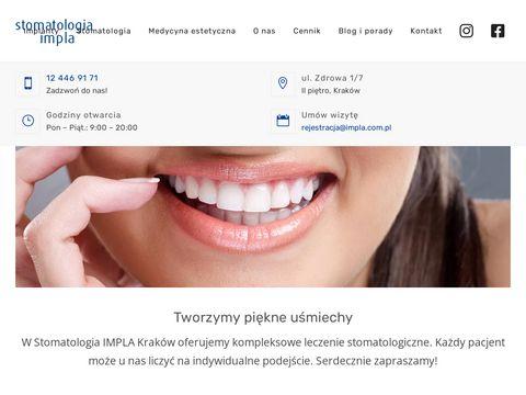 Impla.com.pl - implanty Kraków