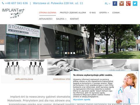 Implant-art.com.pl - zębowy
