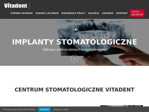 Vitadent.net.pl leczenie próchnicy Kraków
